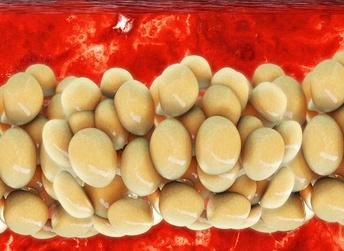 Effektives Bauchtraining: Foto von Fettzellen in der Bauchdecke